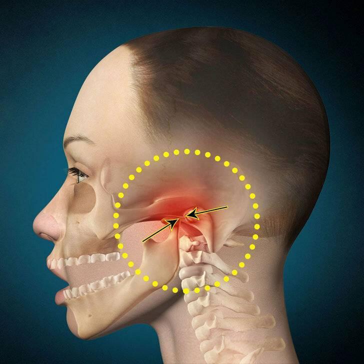 Синдром горнера: что это, причины, симптомы, лечение
