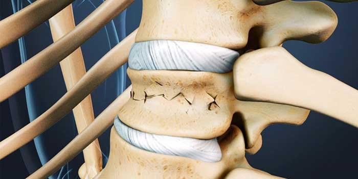 Компрессионный перелом поясничного отдела позвоночника – лечение