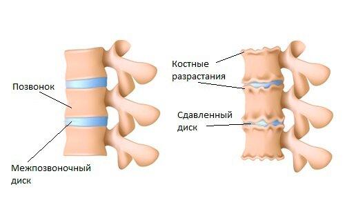 Причины, симптомы и эффективное лечение артроза позвоночника