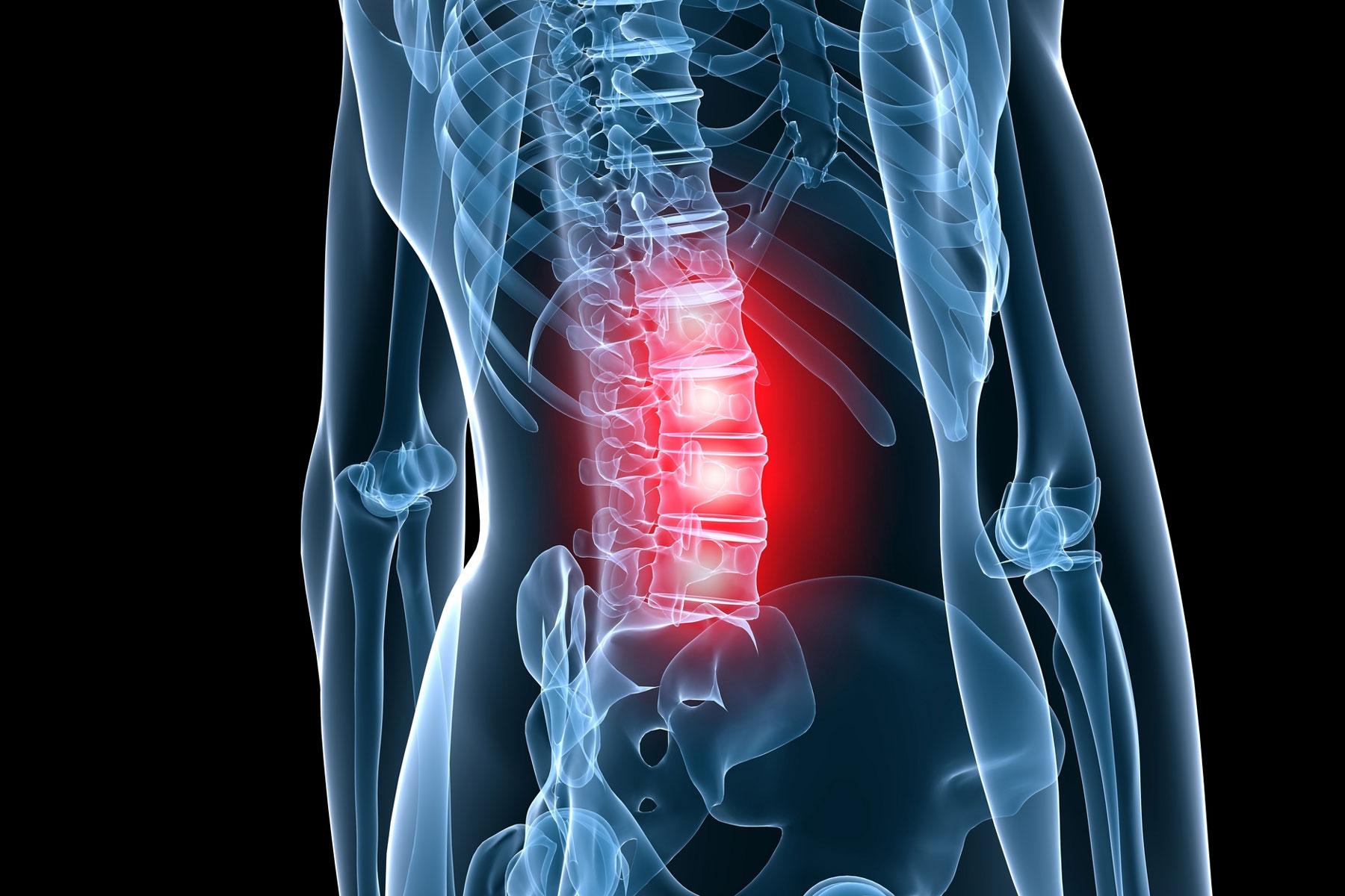 Хондроз поясничного отдела позвоночника — симптомы, лечение