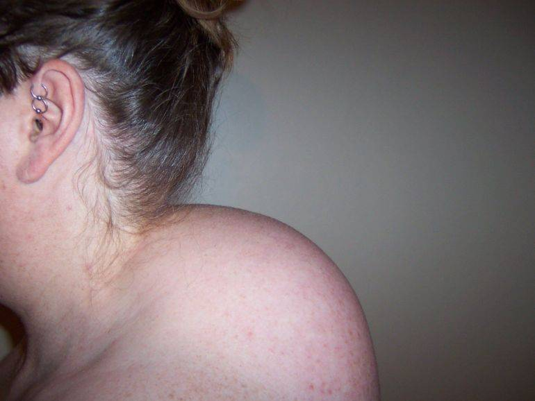 Горб на шее: как избавиться, причины появления, симптомы и диагностика патологии
