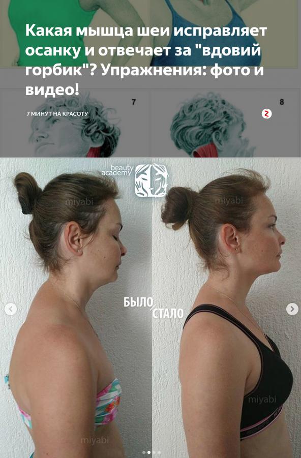 Как избавиться от холки на шее сзади