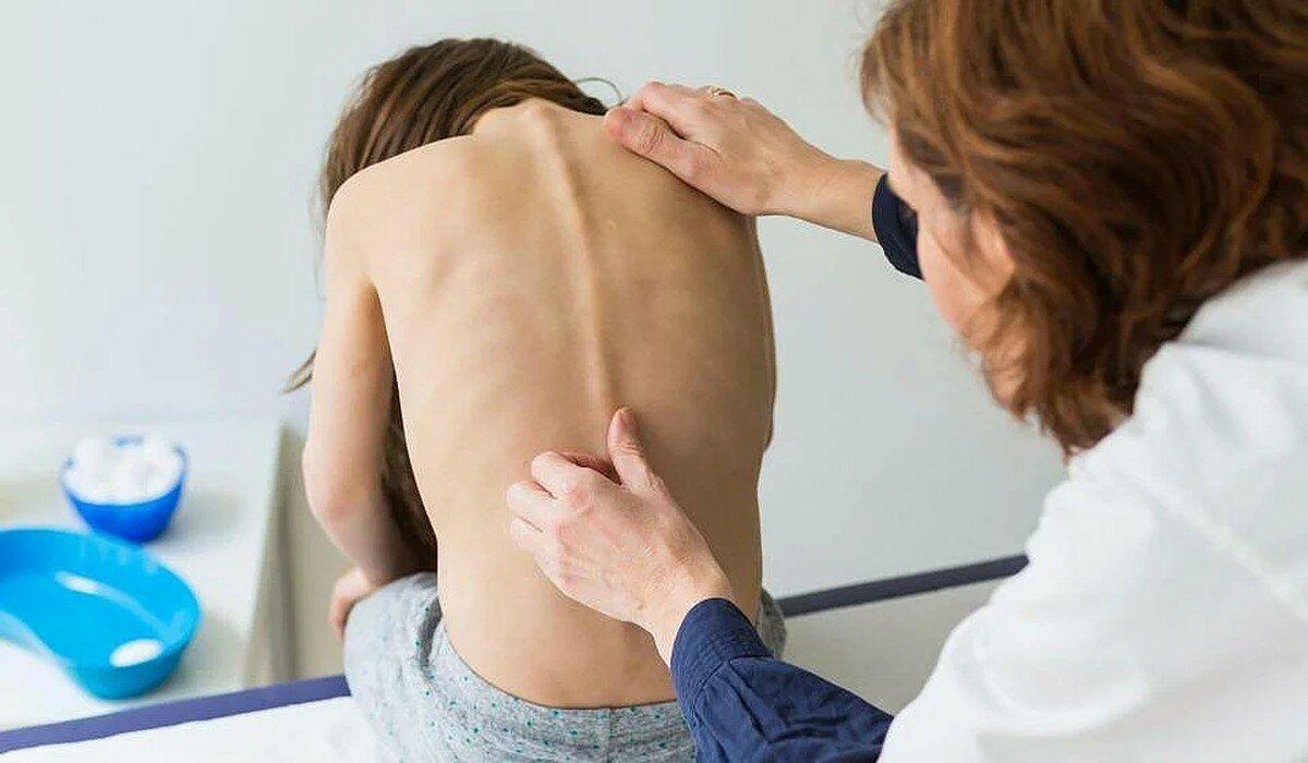 Остеохондроз – лечение меновазином