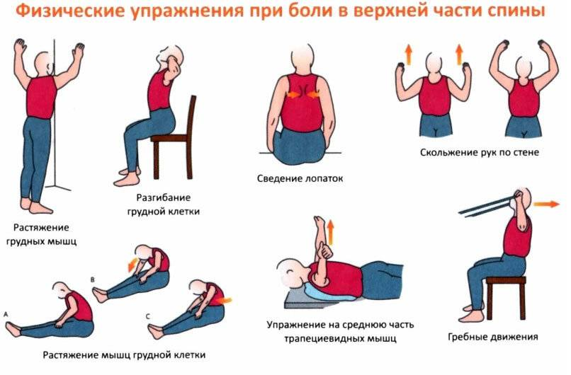 Спондилоартроз шеи