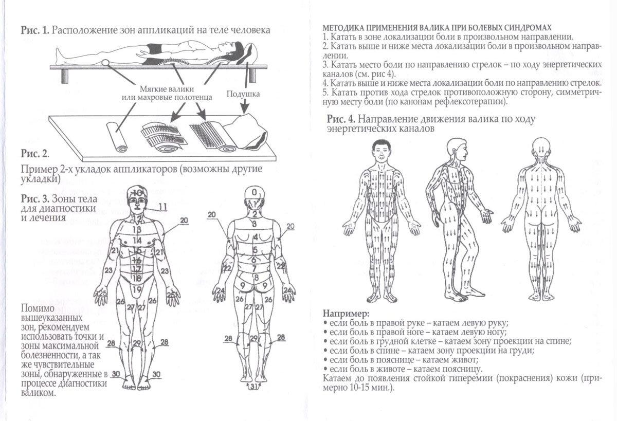 Особенности использования аппарата кузнецова для спины
