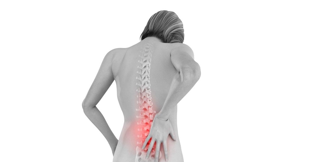 Радикулит поясничный: симптомы и лечение
