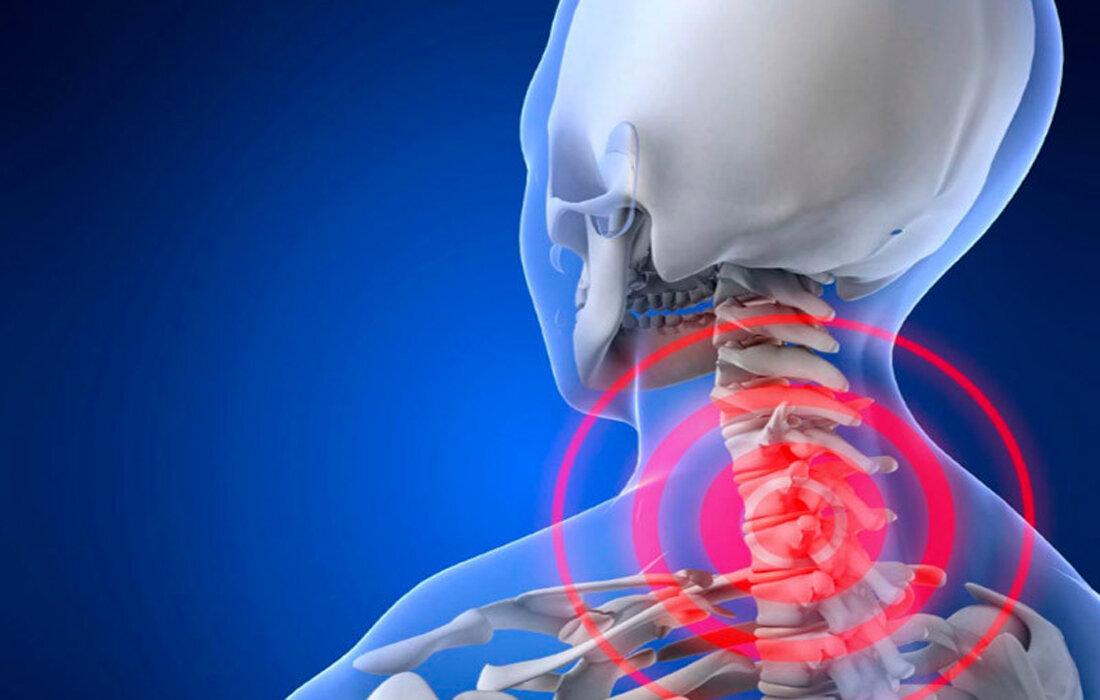 Шейный радикулит: лечение, симптомы, причины, профилактика, диагностика | spinomed.ru