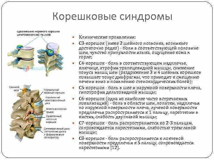 Дистрофические изменения шейного отдела позвоночника с нарушением статики