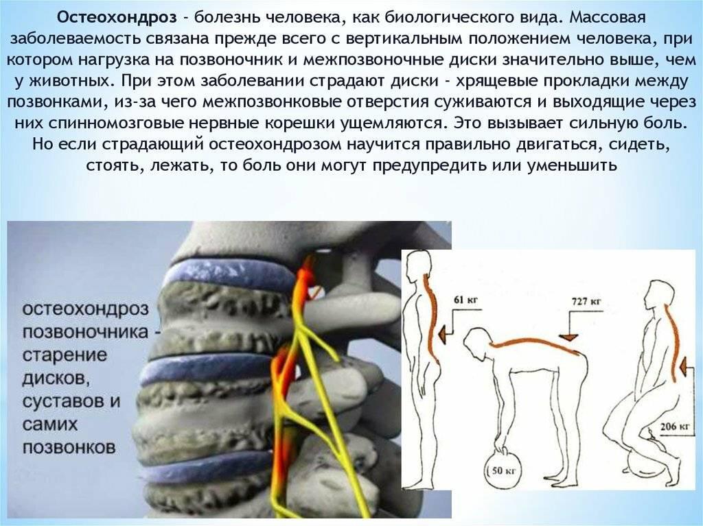 Эффективное лечение остеохондроза в домашних условиях: как избавиться от боли в отделах позвоночника