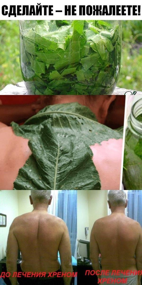 Как лечить остеохондроз листьями хрена
