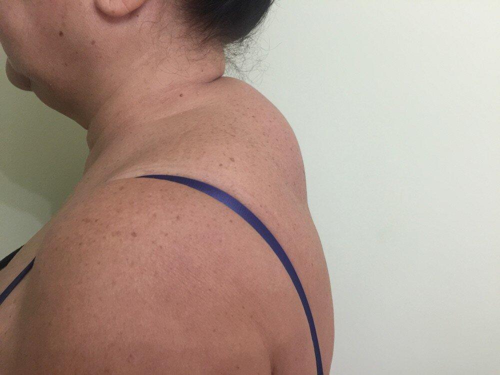 Как убрать бизоний, соляной горб на шее: причины появления, методы лечения и профилактики