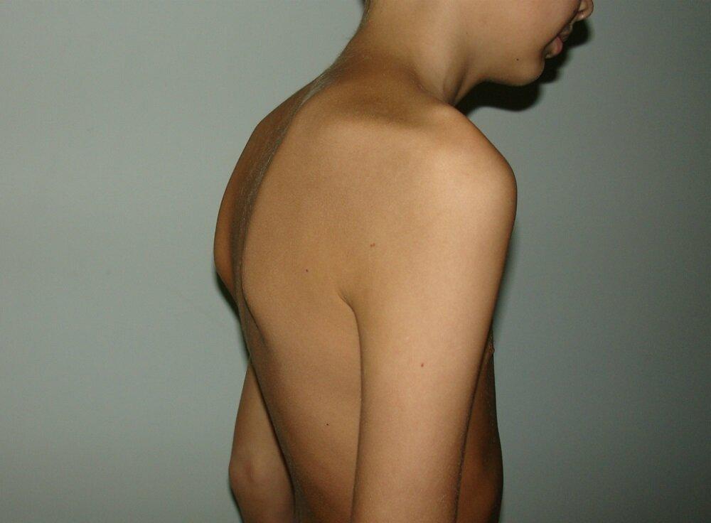 Болезнь шейермана-мау (юношеский кифоз)