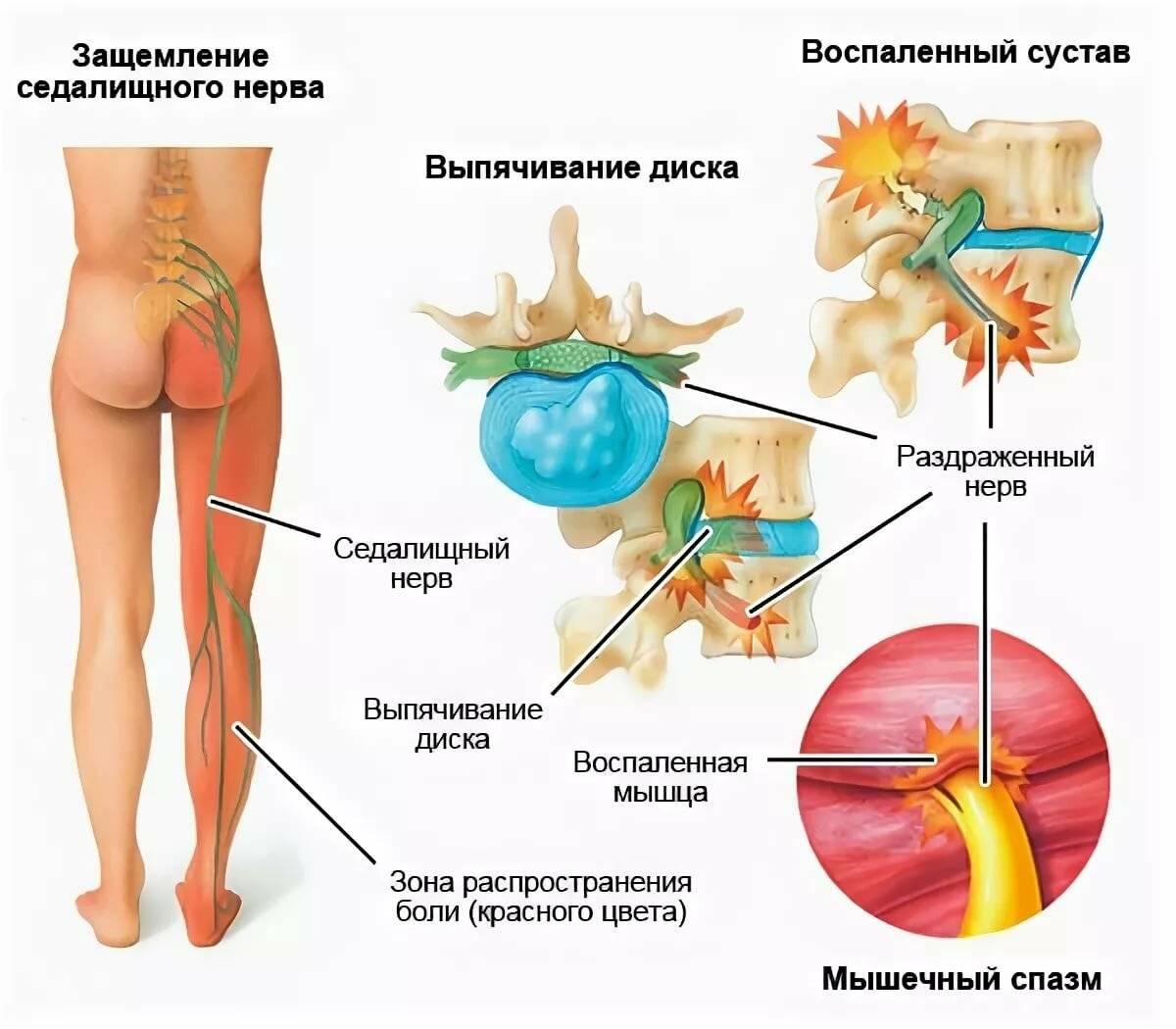 Лечение одышки при остеохондрозе