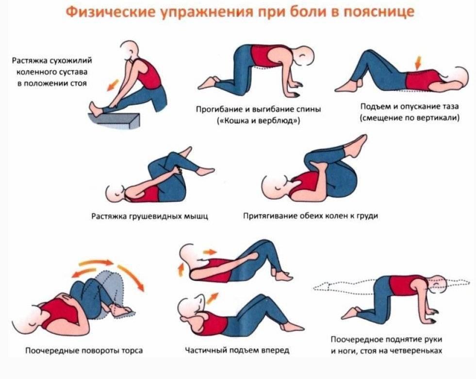 Лечебная физкультура при межпозвоночной грыже: правила выполнения и меры предосторожности