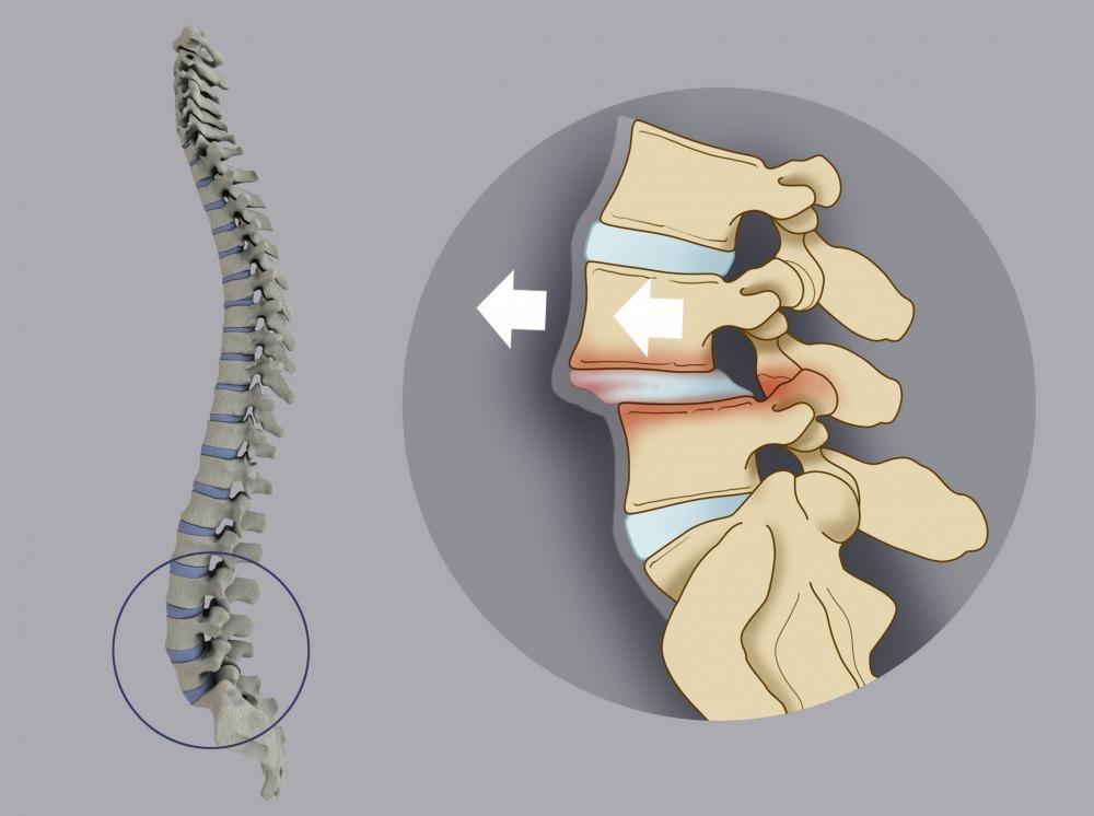 Миелодисплазия пояснично-крестцового отдела позвоночника
