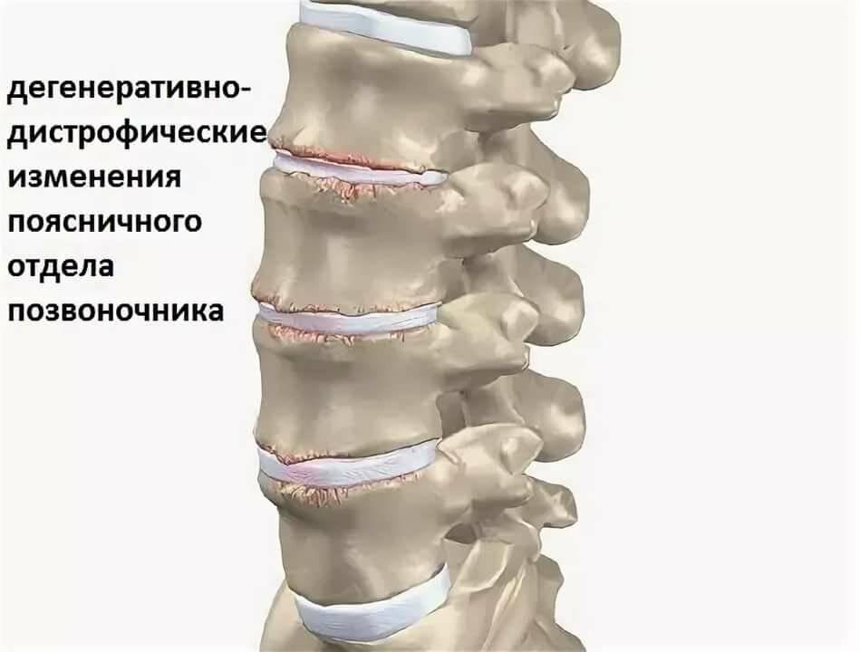 Остеопороз | симптомы | диагностика | лечение - docdoc.ru