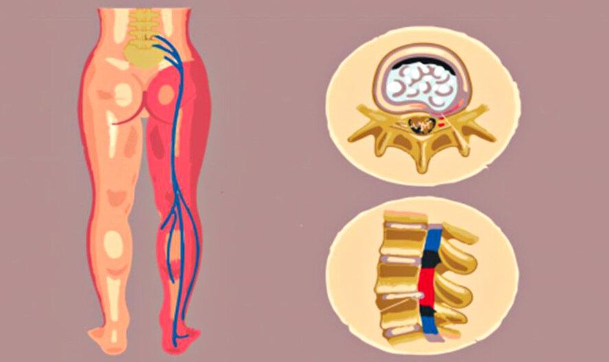 Ишиалгия: симптомы и лечение и методы диагностики — симптомы