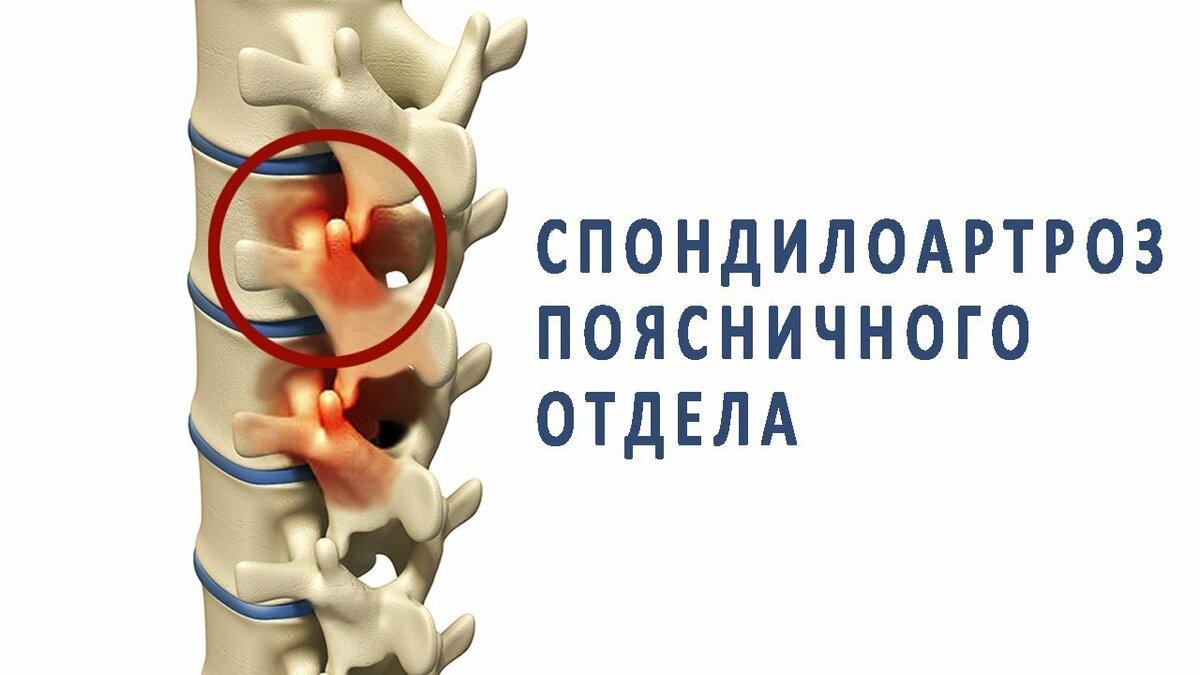 Как диагностировать и лечить артроз позвоночника?