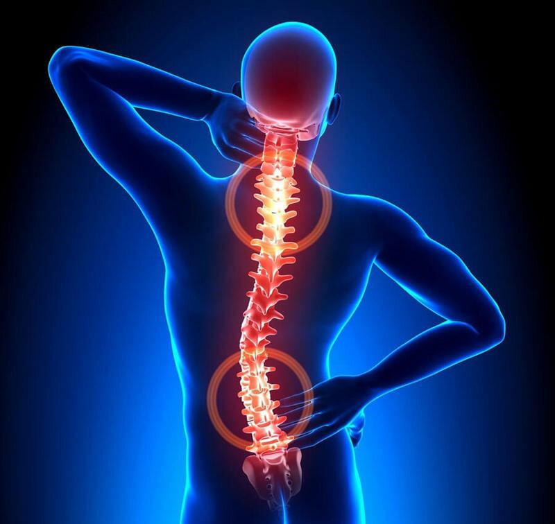 Воспаление при остеохондрозе