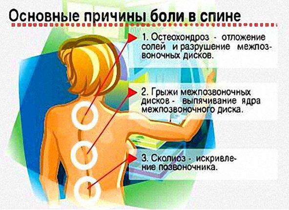 Причины и лечение болей в спине в районе позвоночника между лопаток