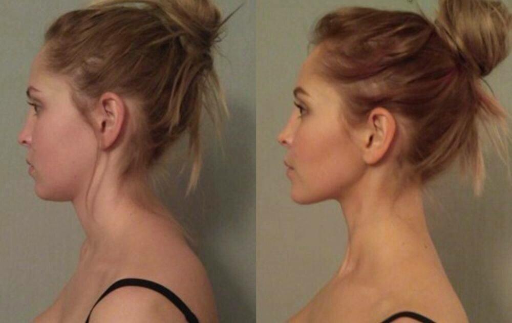 Как избавиться от горба на шее у женщин и мужчин. массаж, гимнастика, упражнения, операция