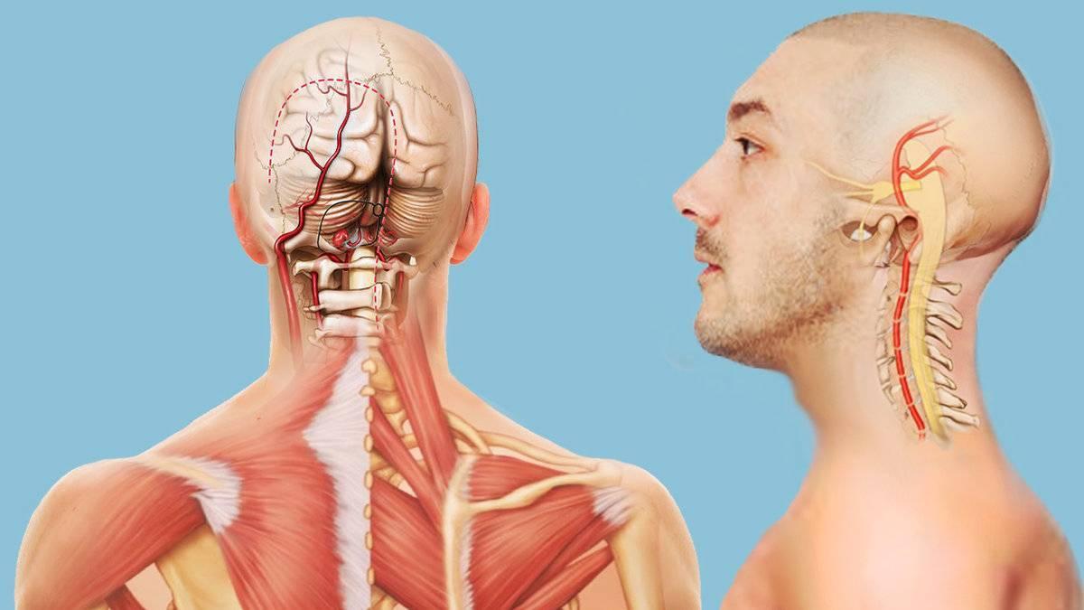 Шейно-черепной синдром - вопрос невропатологу - 03 онлайн