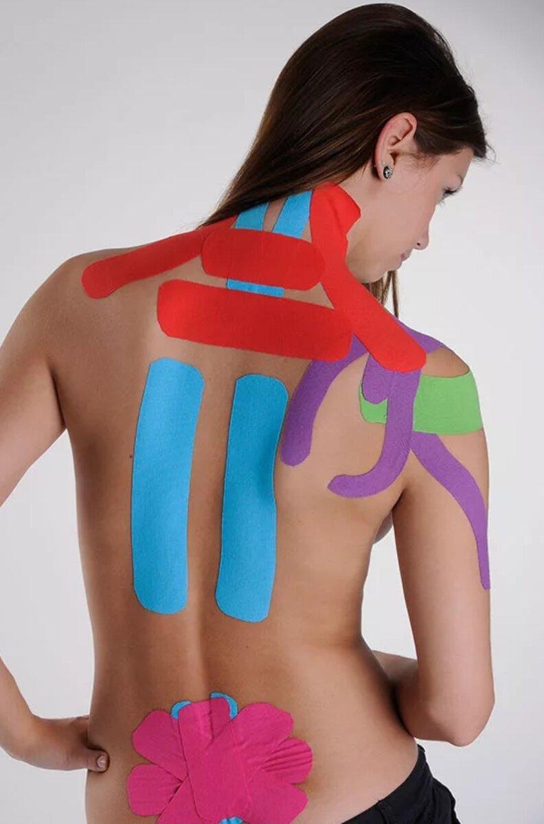Что из себя представляет и как проводится тейпирование спины?