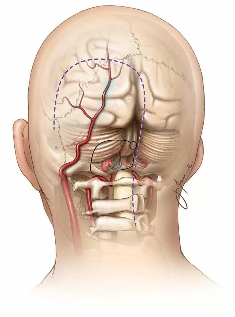 Шейно-черепной синдром: причины, симптомы и особенности лечения
