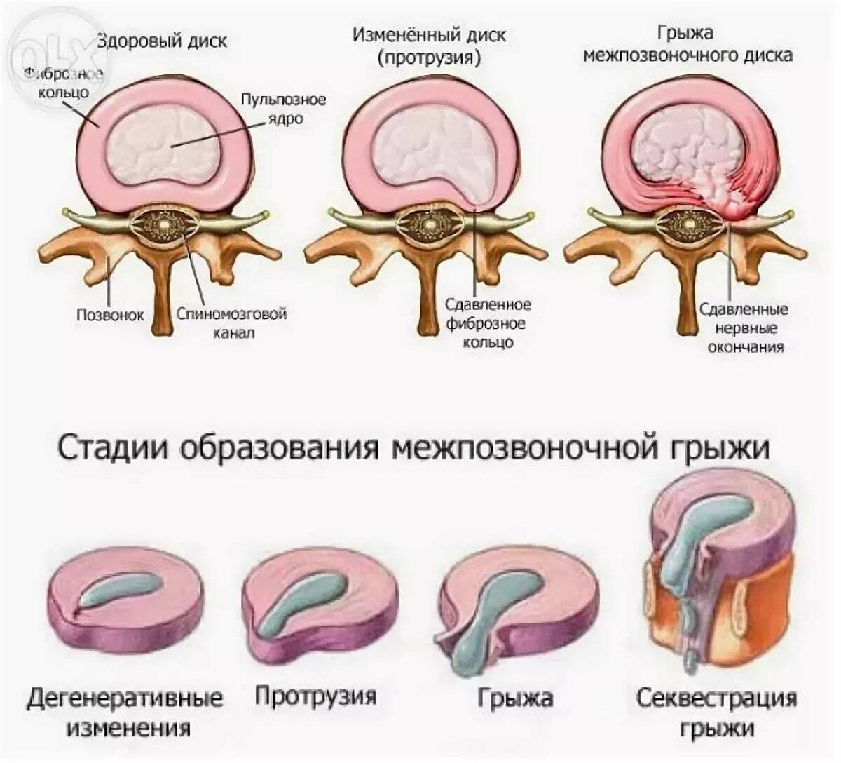 Протрузия межпозвонковых дисков поясничного отдела лечение