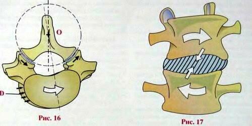 Торсия позвонков что это такое - лечение суставов