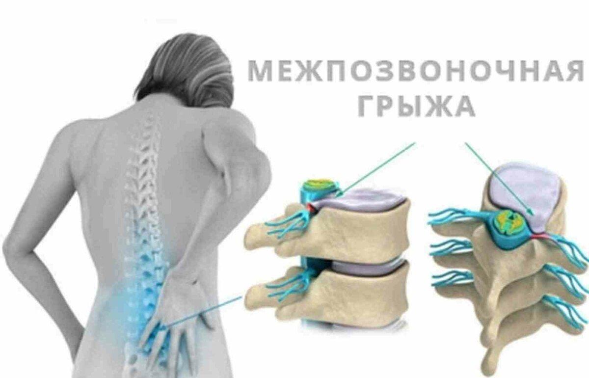 Современные методы лечения грыжи поясничного отдела