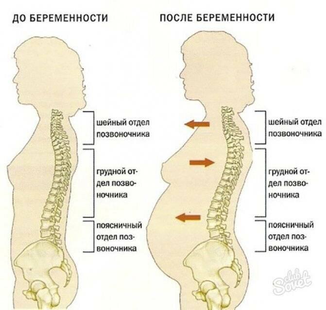 Болит поясница после родов: как предотвратить и что делать при появлении боли
